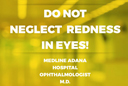Do Not Neglect Redness in Eyes